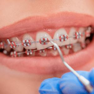 Избранные вопросы ортодонтического лечения больных с заболеваниями зубо-челюстно-лицевой области